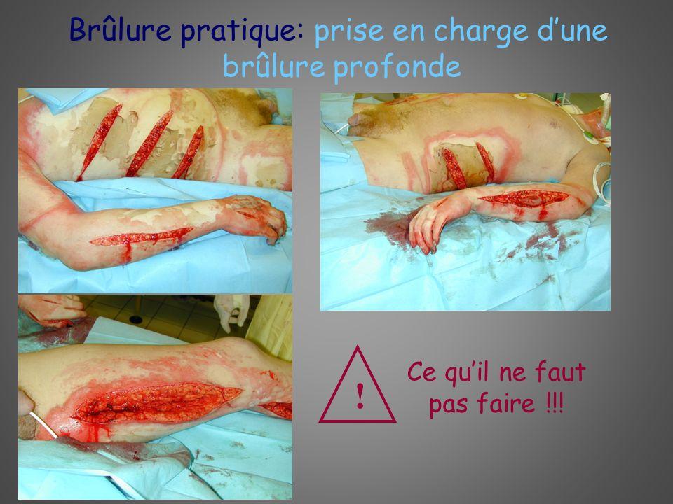 Brûlure pratique: prise en charge dune brûlure profonde Ce quil ne faut pas faire !!! !