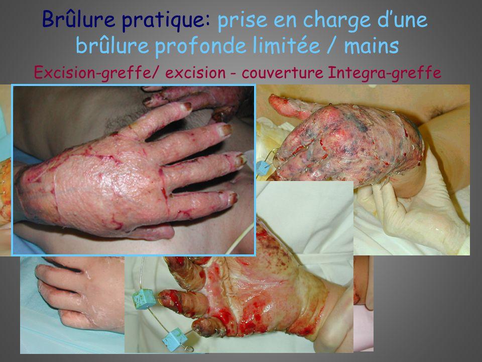 Brûlure pratique: prise en charge dune brûlure profonde limitée / mains Excision-greffe/ excision - couverture Integra-greffe