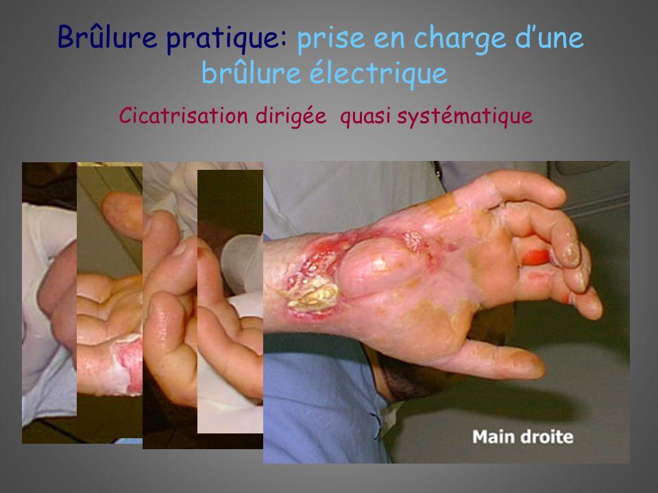 Brûlure pratique: prise en charge dune brûlure électrique Cicatrisation dirigée quasi systématique