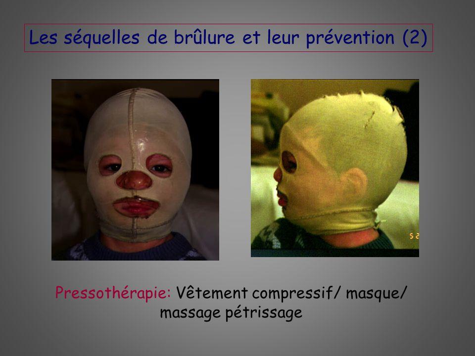 Pressothérapie: Vêtement compressif/ masque/ massage pétrissage Les séquelles de brûlure et leur prévention (2)