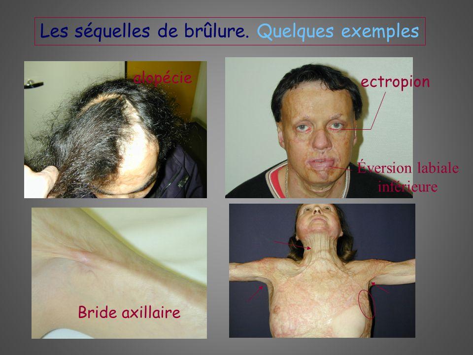 Les séquelles de brûlure. Quelques exemples alopécie ectropion Éversion labiale inférieure Bride axillaire