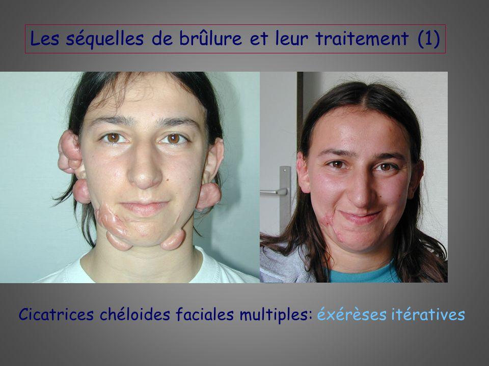 Les séquelles de brûlure et leur traitement (1) Cicatrices chéloides faciales multiples: éxérèses itératives