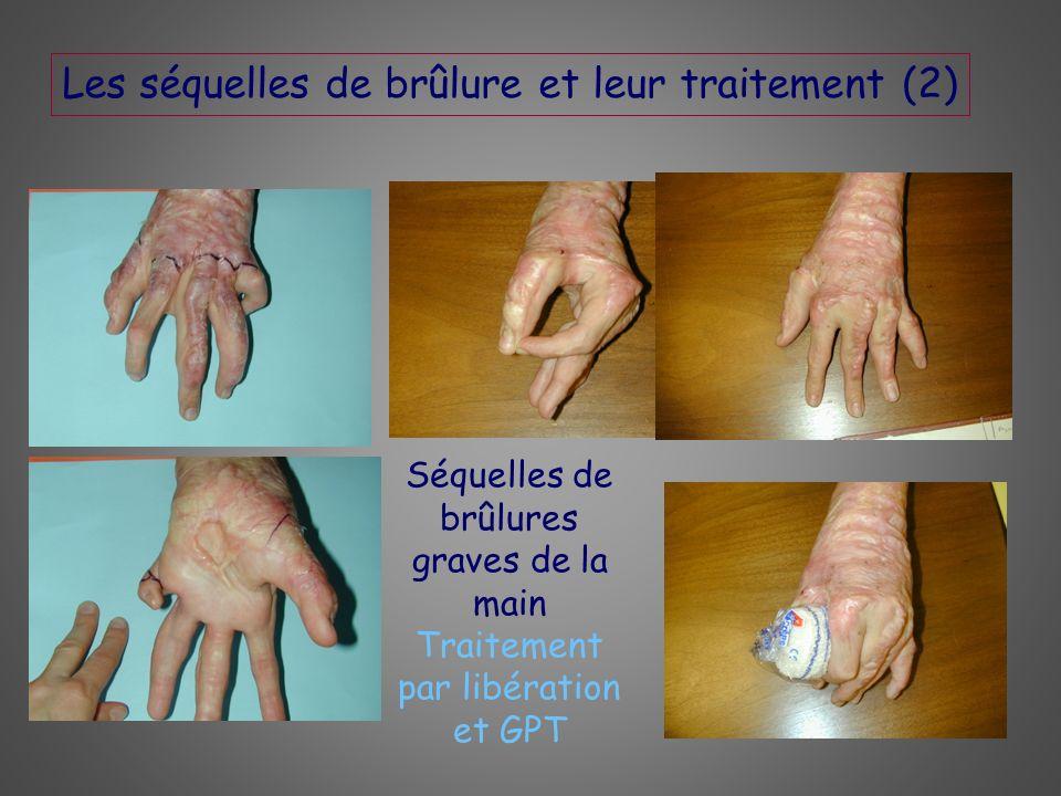 Les séquelles de brûlure et leur traitement (2) Séquelles de brûlures graves de la main Traitement par libération et GPT
