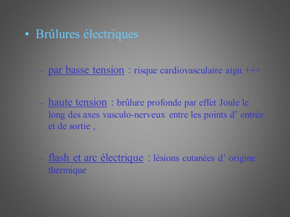 Brûlures électriques – par basse tension : risque cardiovasculaire aigu +++ – haute tension : brûlure profonde par effet Joule le long des axes vascul