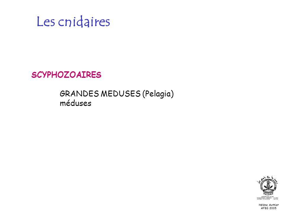 Les cnidaires SCYPHOZOAIRES GRANDES MEDUSES (Pelagia) méduses Hélène Authier AFBS 2005