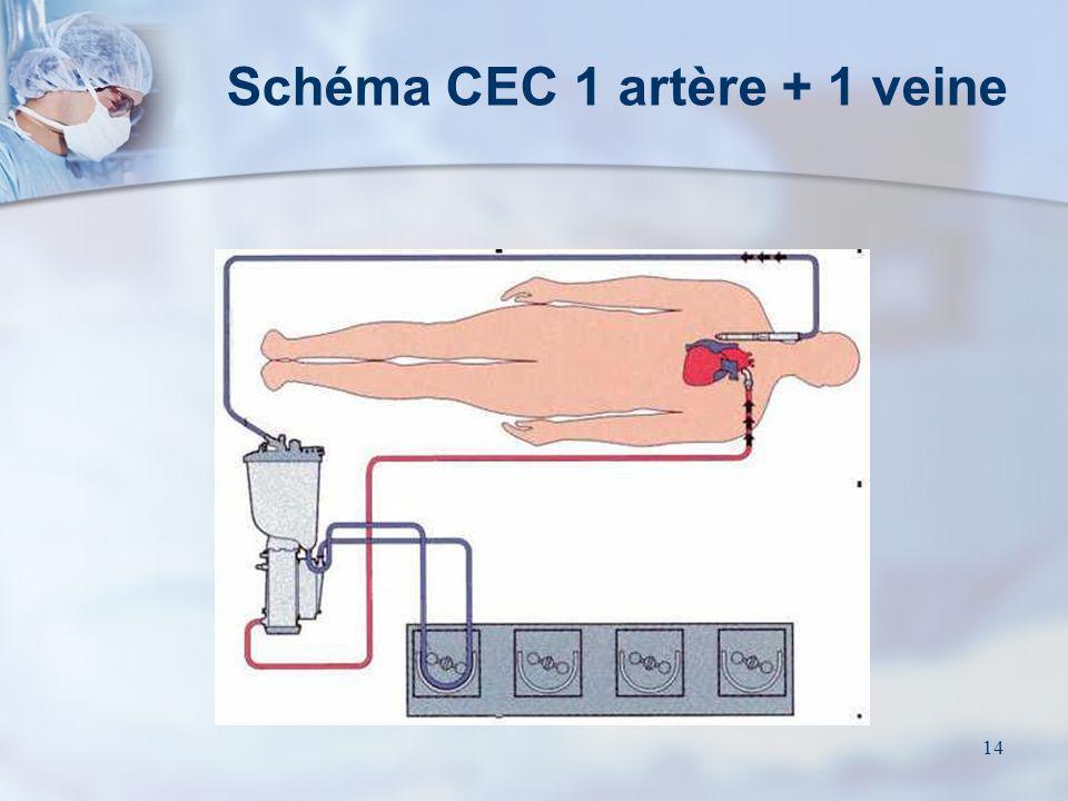 14 Schéma CEC 1 artère + 1 veine