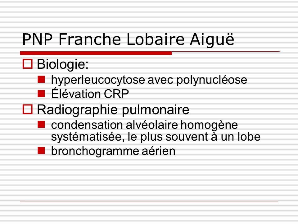 PNP Franche Lobaire Aiguë Biologie: hyperleucocytose avec polynucléose Élévation CRP Radiographie pulmonaire condensation alvéolaire homogène systématisée, le plus souvent à un lobe bronchogramme aérien