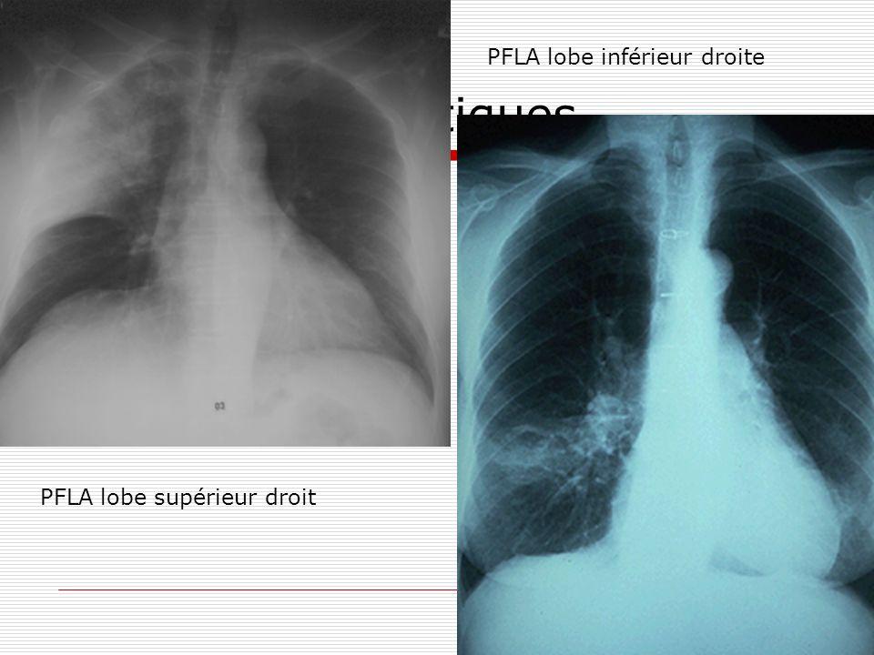Moyens diagnostiques PFLA lobe supérieur droit PFLA lobe inférieur droite