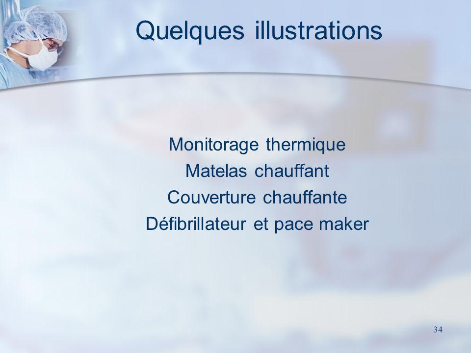 34 Quelques illustrations Monitorage thermique Matelas chauffant Couverture chauffante Défibrillateur et pace maker