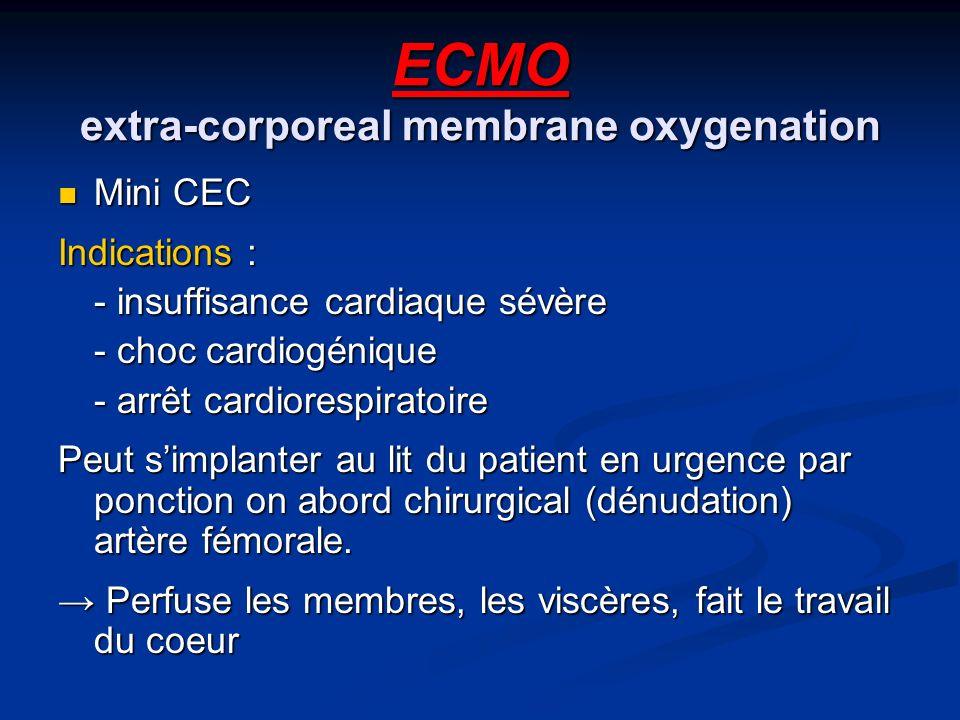 ECMO extra-corporeal membrane oxygenation Mini CEC Mini CEC Indications : - insuffisance cardiaque sévère - choc cardiogénique - arrêt cardiorespiratoire Peut simplanter au lit du patient en urgence par ponction on abord chirurgical (dénudation) artère fémorale.