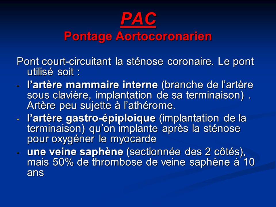 PAC Pontage Aortocoronarien Pont court-circuitant la sténose coronaire.