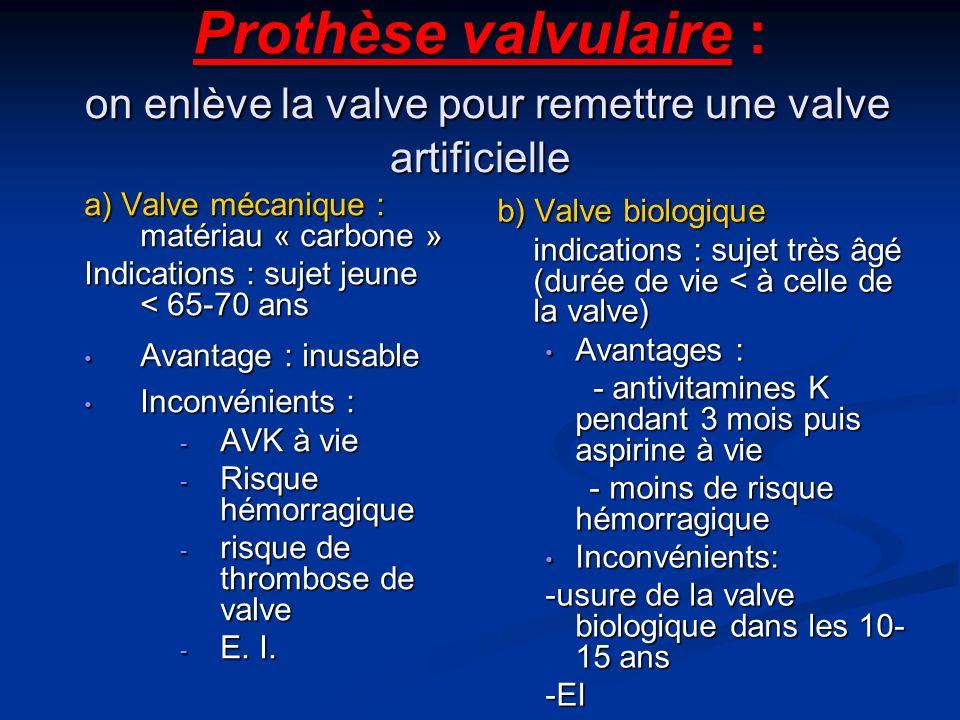 Prothèse valvulaire : on enlève la valve pour remettre une valve artificielle a) Valve mécanique : matériau « carbone » Indications : sujet jeune < 65-70 ans Avantage : inusable Avantage : inusable Inconvénients : Inconvénients : - AVK à vie - Risque hémorragique - risque de thrombose de valve - E.