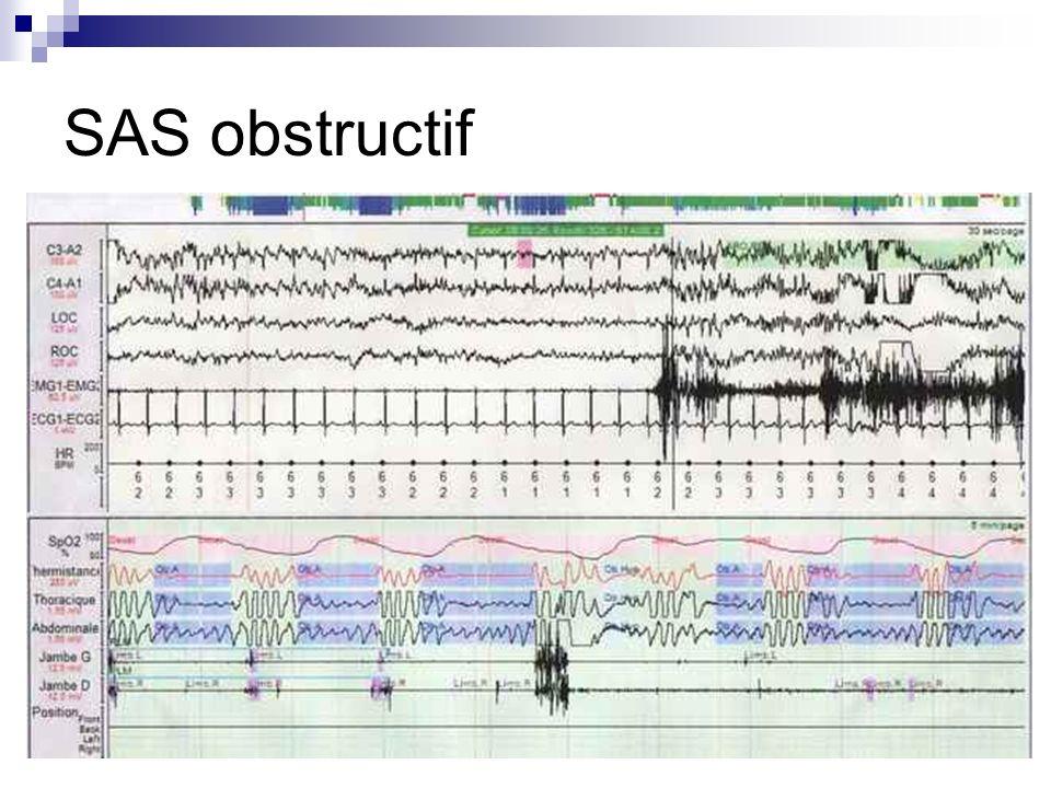 SAS obstructif