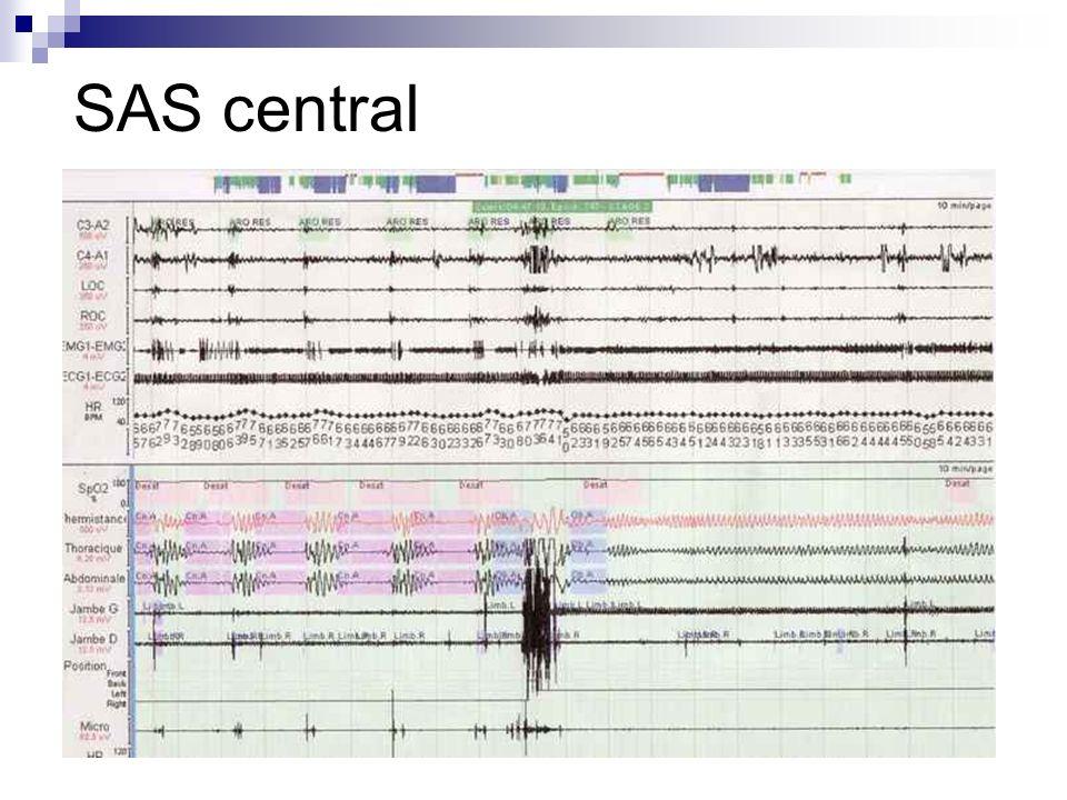 SAS central