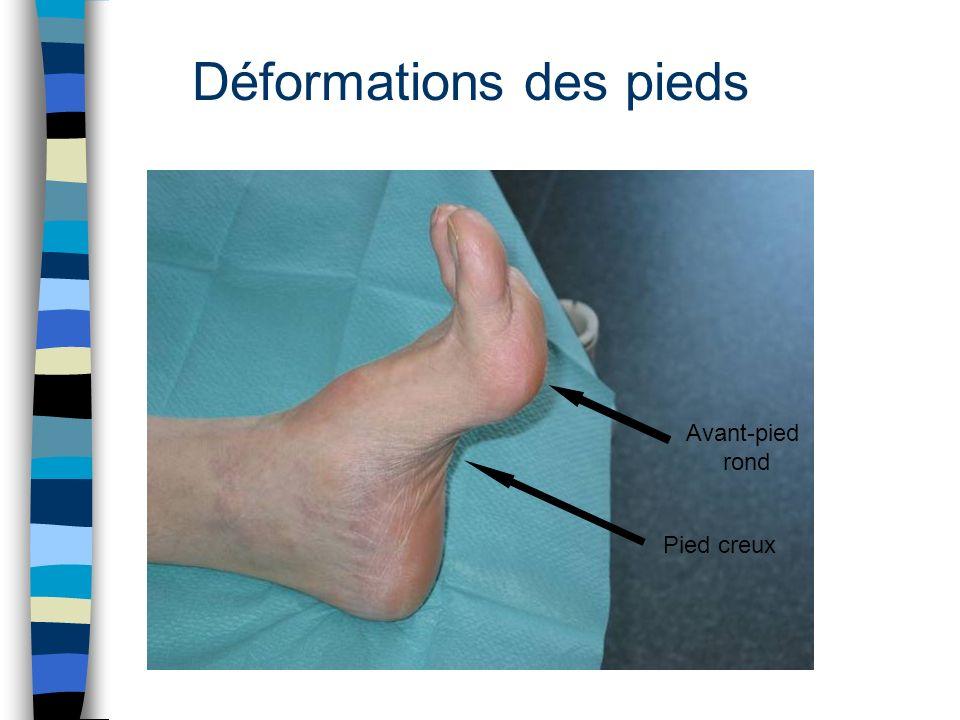 Déformations des pieds Avant-pied rond Pied creux