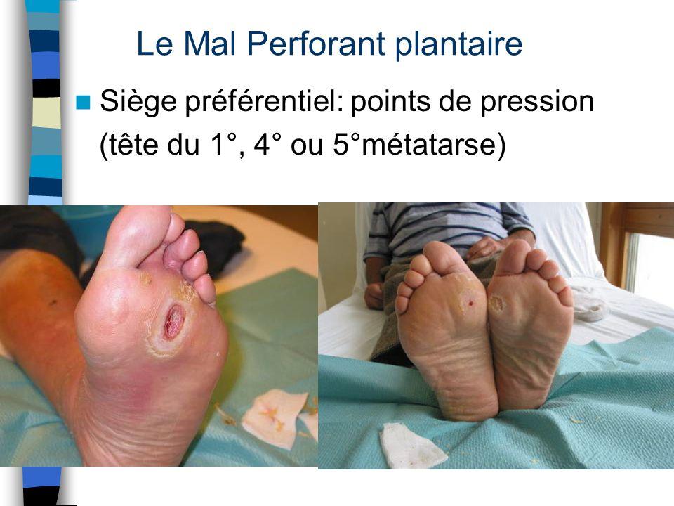 Le Mal Perforant plantaire Siège préférentiel: points de pression (tête du 1°, 4° ou 5°métatarse)