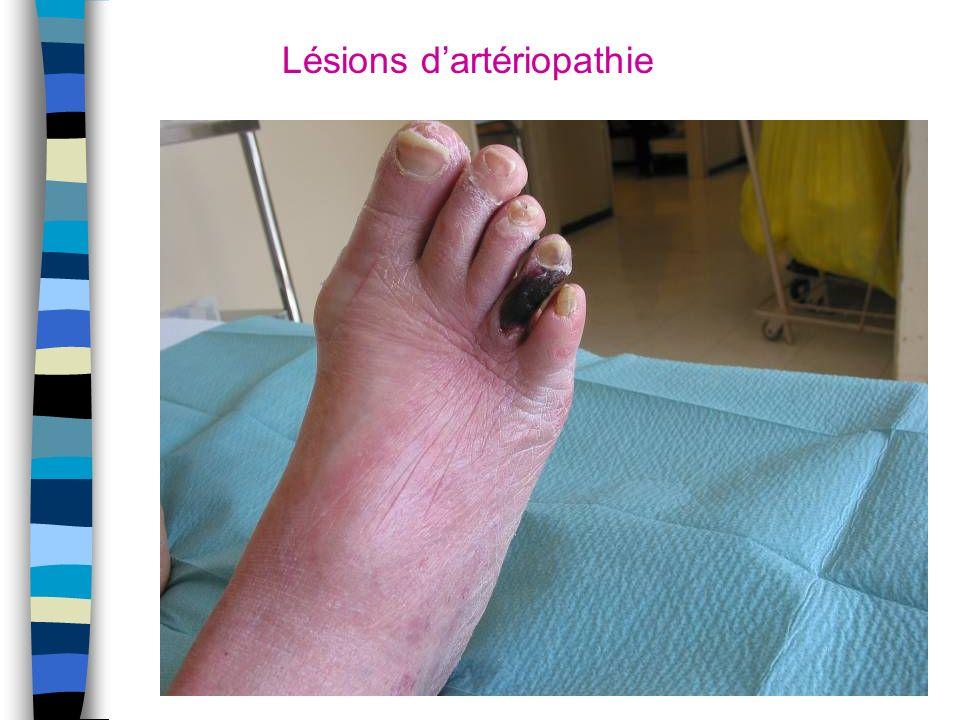 Lésions dartériopathie