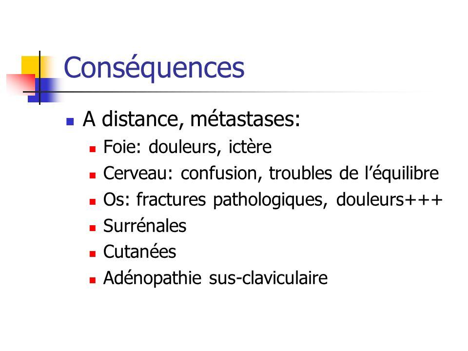 Conséquences A distance, métastases: Foie: douleurs, ictère Cerveau: confusion, troubles de léquilibre Os: fractures pathologiques, douleurs+++ Surrén