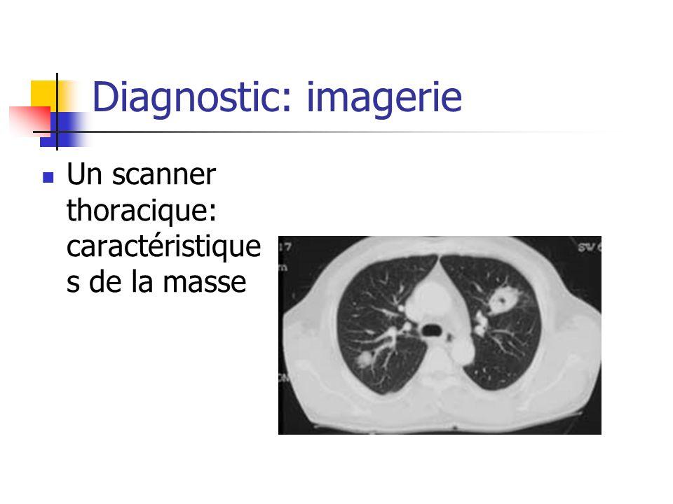 Diagnostic: imagerie Un scanner thoracique: caractéristique s de la masse