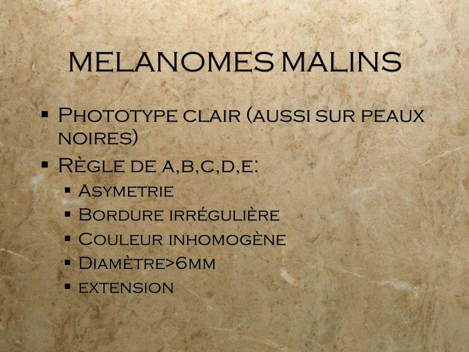 MELANOMES MALINS Phototype clair (aussi sur peaux noires) Règle de a,b,c,d,e: Asymetrie Bordure irrégulière Couleur inhomogène Diamètre>6mm extension