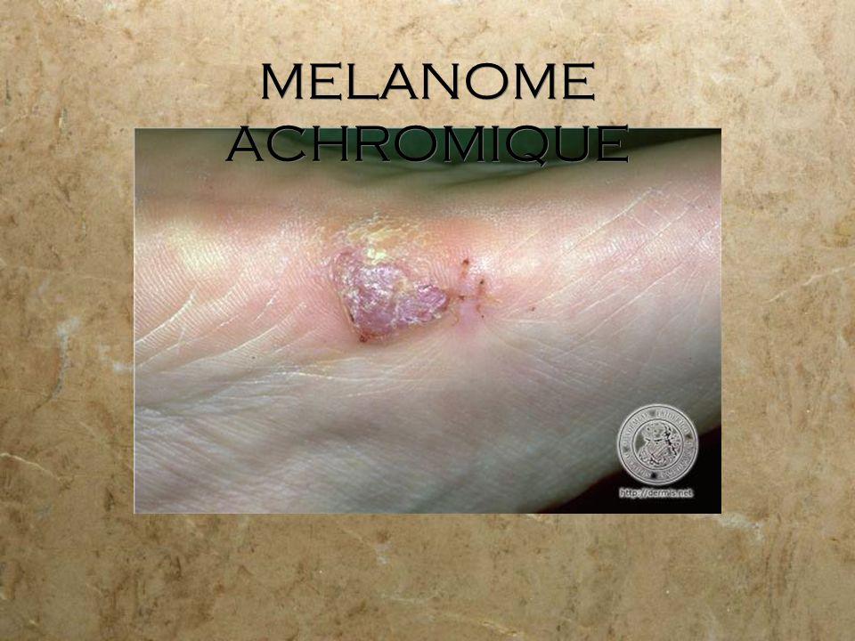 MELANOME ACHROMIQUE