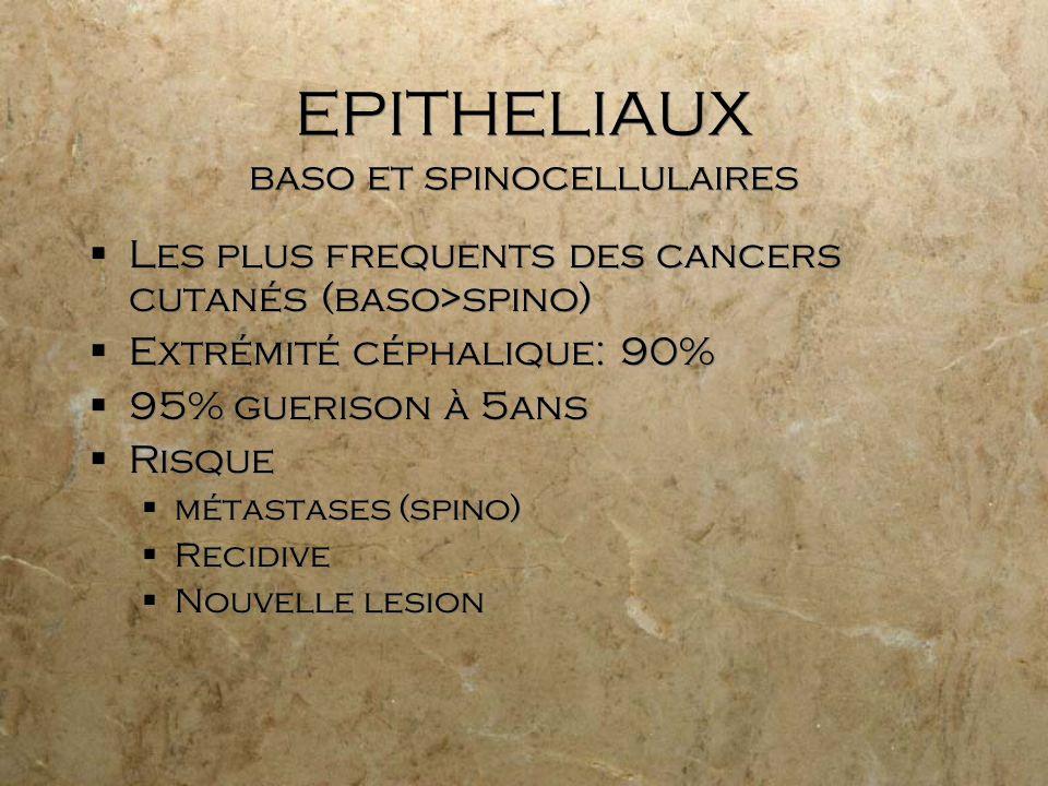 EPITHELIAUX baso et spinocellulaires Les plus frequents des cancers cutanés (baso>spino) Extrémité céphalique: 90% 95% guerison à 5ans Risque métastas