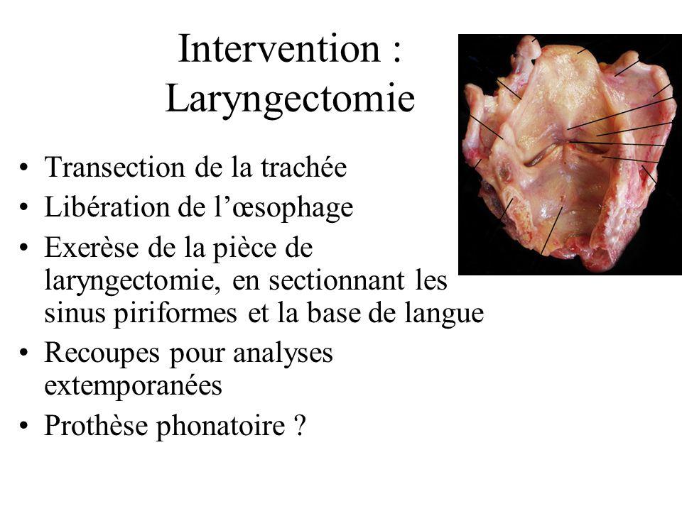Intervention : Laryngectomie Transection de la trachée Libération de lœsophage Exerèse de la pièce de laryngectomie, en sectionnant les sinus piriformes et la base de langue Recoupes pour analyses extemporanées Prothèse phonatoire ?