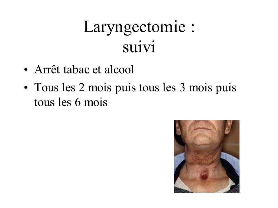 Laryngectomie : suivi Arrêt tabac et alcool Tous les 2 mois puis tous les 3 mois puis tous les 6 mois