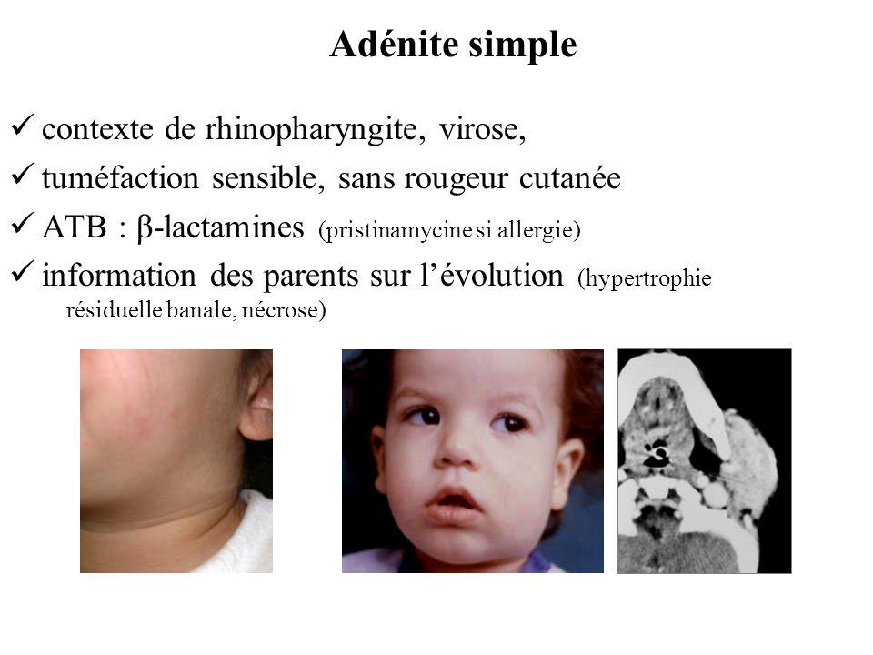 contexte de rhinopharyngite, virose, tuméfaction sensible, sans rougeur cutanée ATB : β-lactamines (pristinamycine si allergie) information des parent