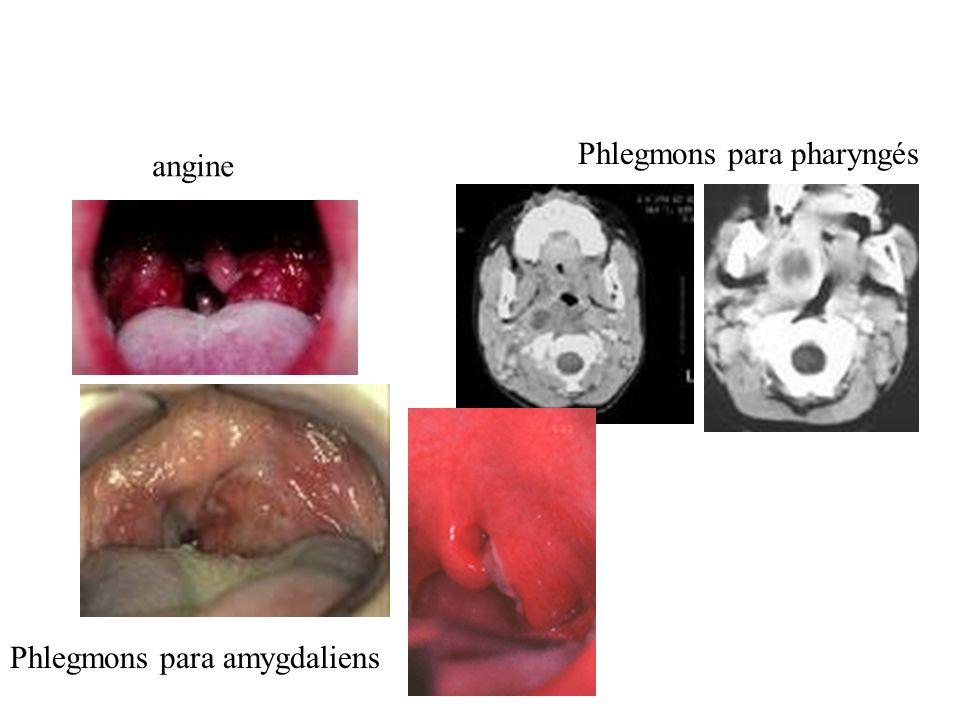 angine Phlegmons para amygdaliens Phlegmons para pharyngés