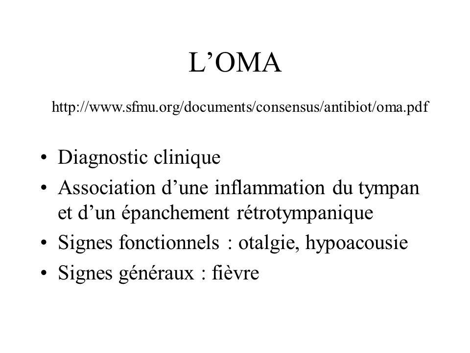 LOMA Diagnostic clinique Association dune inflammation du tympan et dun épanchement rétrotympanique Signes fonctionnels : otalgie, hypoacousie Signes