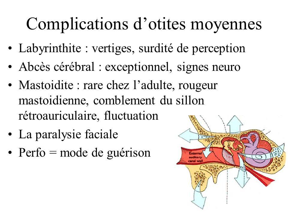Complications dotites moyennes Labyrinthite : vertiges, surdité de perception Abcès cérébral : exceptionnel, signes neuro Mastoidite : rare chez ladul