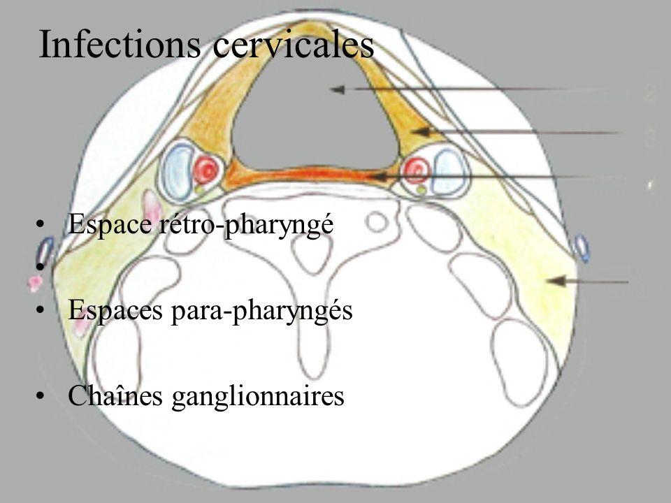 Phlegmon orbitaire exophtalmie très importante chémosis ophtalmoplégie mydriase anesthésie cornéenne Thrombose du sinus caverneux atteinte controlatérale syndrome méningé et autres complications endocrâniennes
