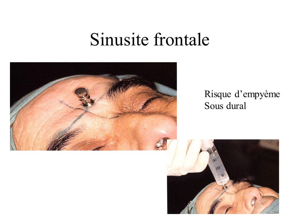 Sinusite frontale Risque dempyème Sous dural