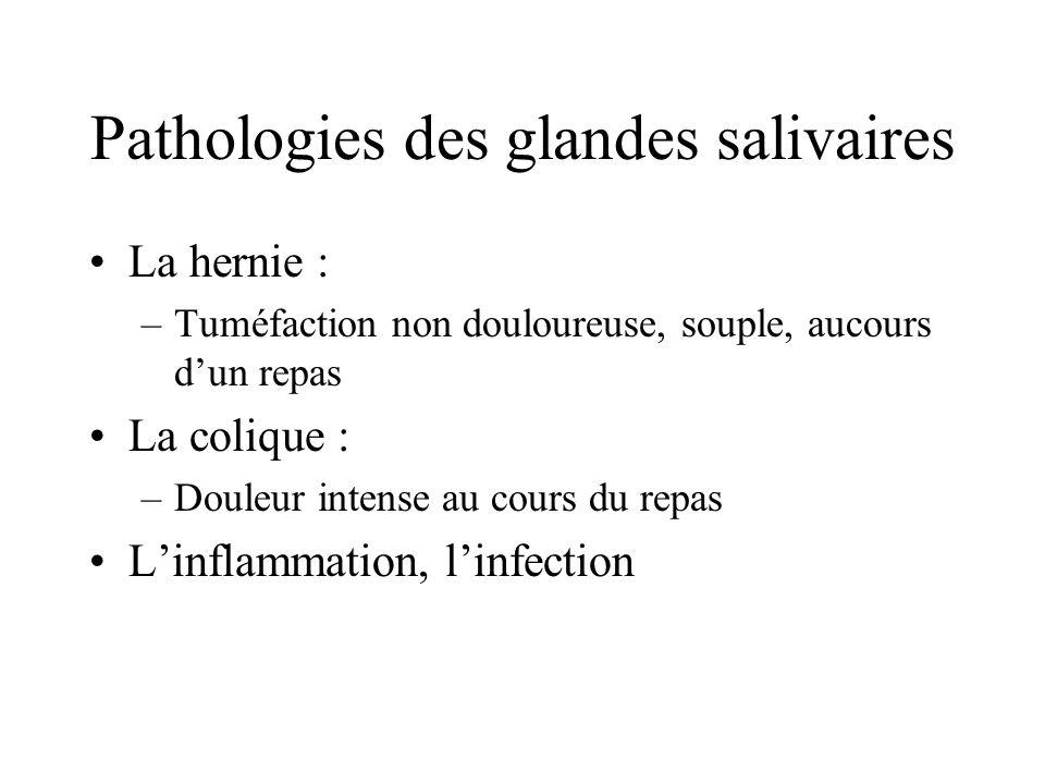 Pathologies des glandes salivaires La hernie : –Tuméfaction non douloureuse, souple, aucours dun repas La colique : –Douleur intense au cours du repas