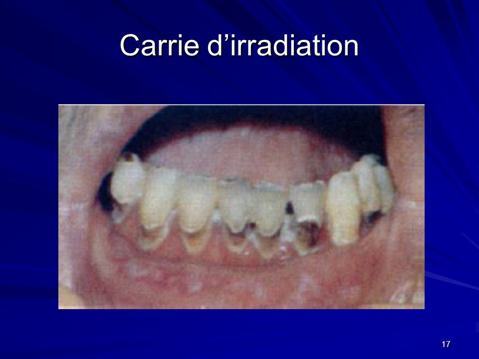 17 Carrie dirradiation