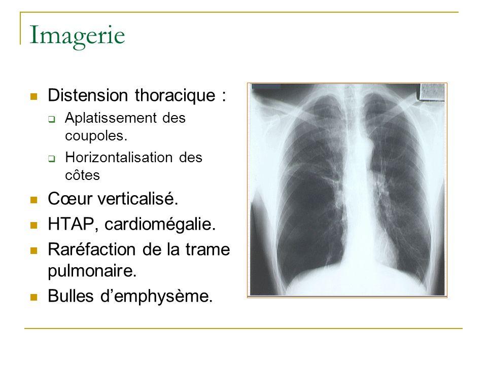 Imagerie Distension thoracique : Aplatissement des coupoles. Horizontalisation des côtes Cœur verticalisé. HTAP, cardiomégalie. Raréfaction de la tram