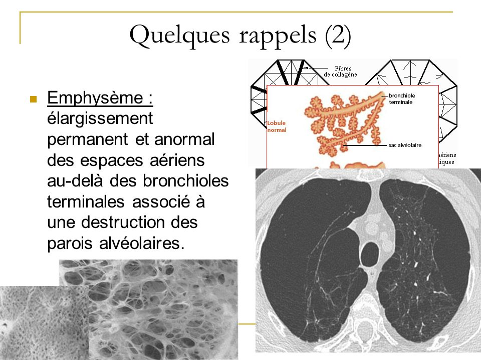 Quelques rappels (2) Emphysème : élargissement permanent et anormal des espaces aériens au-delà des bronchioles terminales associé à une destruction d