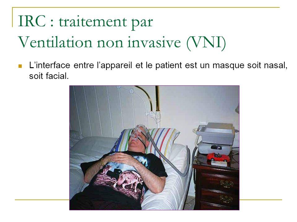 IRC : traitement par Ventilation non invasive (VNI) Linterface entre lappareil et le patient est un masque soit nasal, soit facial.