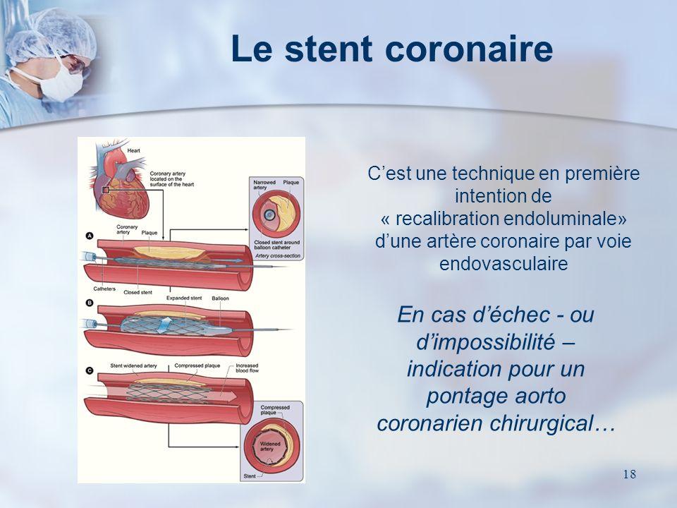 17 La coronarographie Examen indispensable Examen sous anesthésie locale ou générale destiné à : Confirmer le diagnostic clinique et situer les lésion