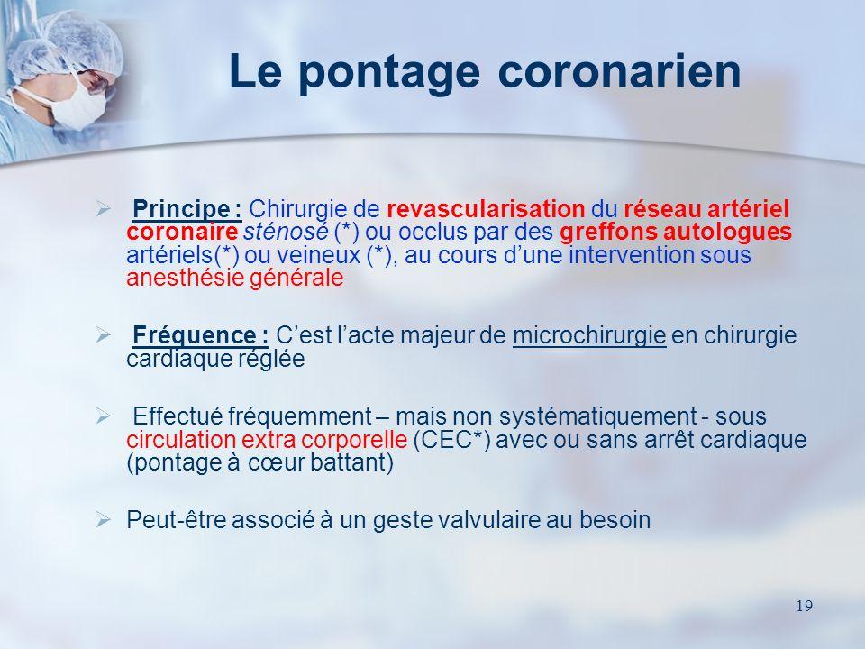 18 Le stent coronaire En cas déchec - ou dimpossibilité – indication pour un pontage aorto coronarien chirurgical… Cest une technique en première inte