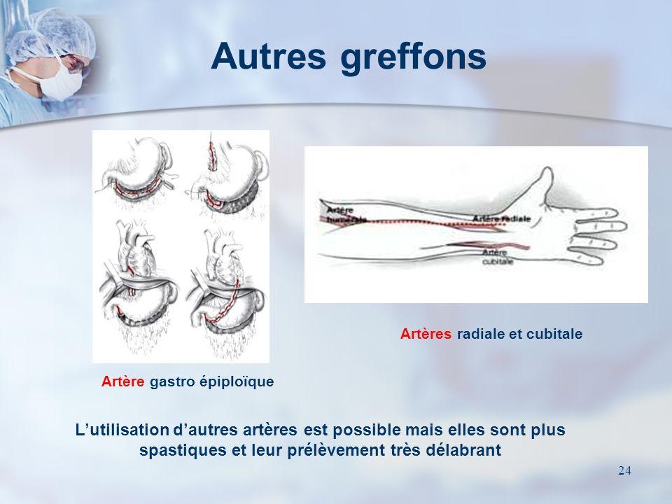 23 Les principaux greffons Les artères thoraciques internes ou Mammaires (AMI) Les veines saphènes internes
