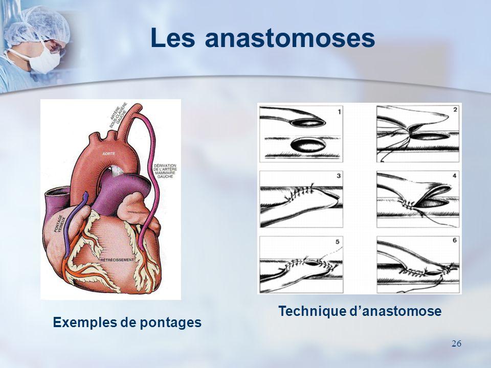 25 Revascularisation par AMI pédiculée transposée Revascularisation par veine saphène interposée ou autre artère en greffon libre Type de revascularis