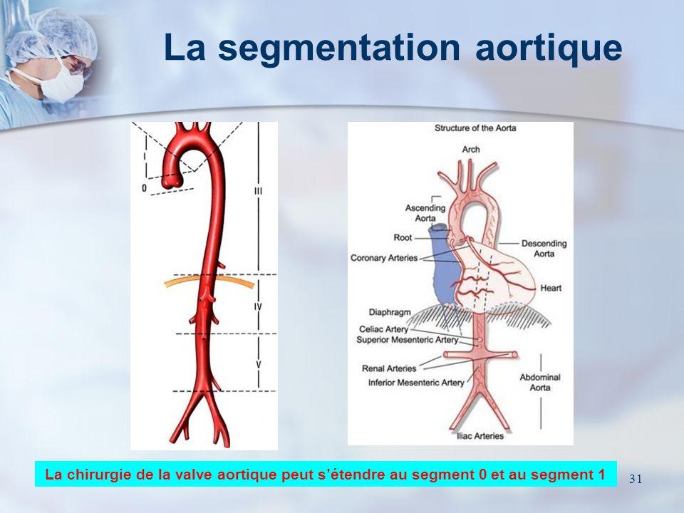 30 Rappel anatomique Sigmoïde aortique Sigmoïde pulmonaire Tricuspide Mitrale