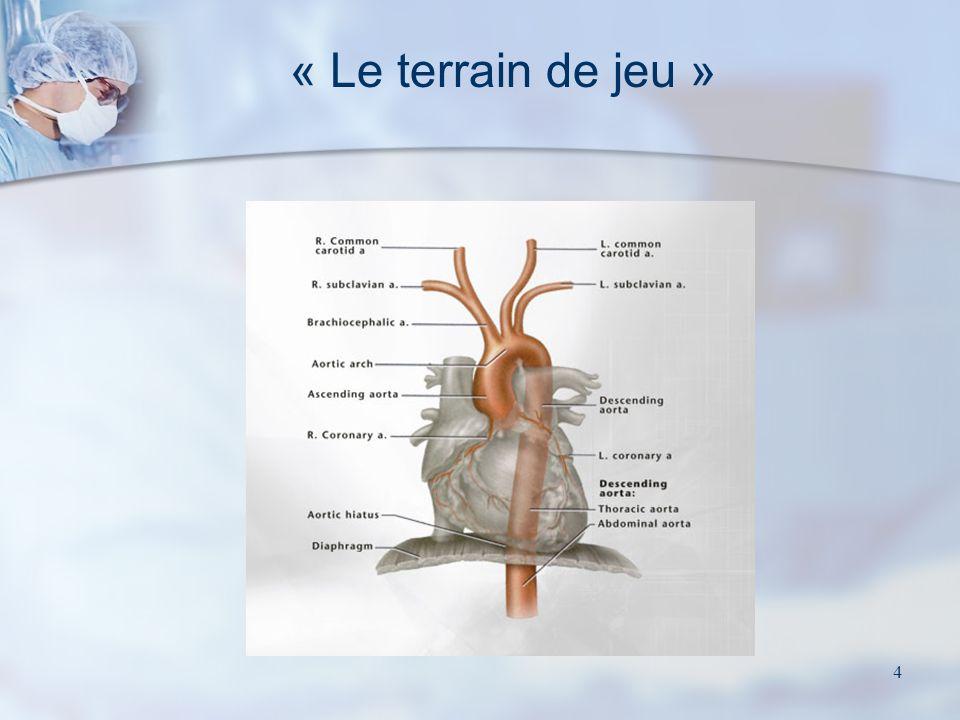 34 Chirurgie du rétrécissement aortique calcifié Valve mécanique Valve biologique Valve native calcifiée