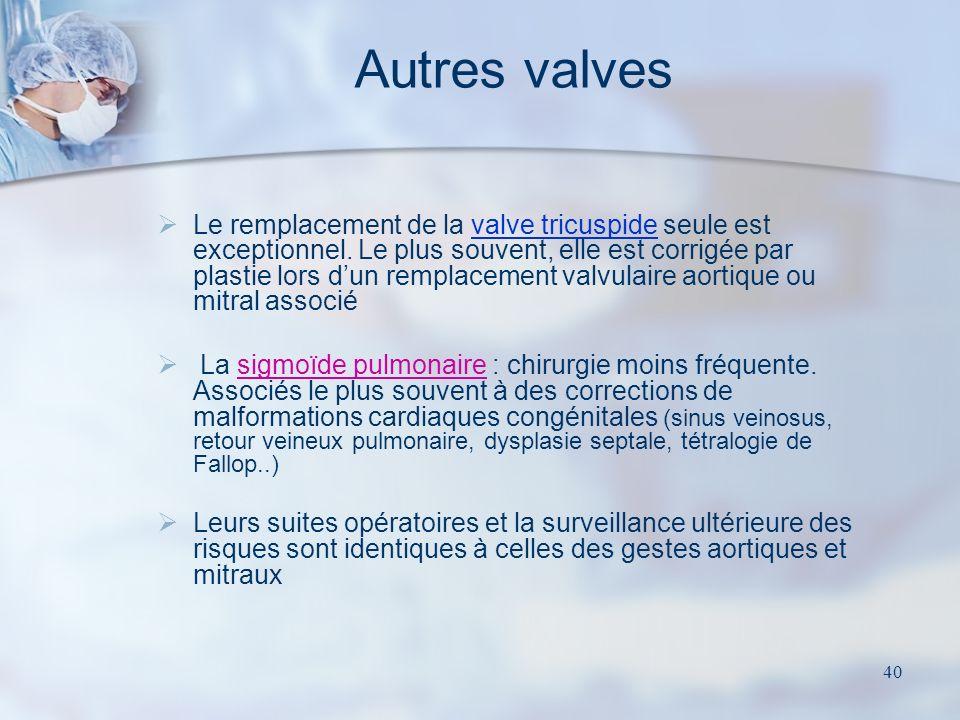 39 La plastie mitrale Conservation / correction de la valve native / cordages / piliers +/- contention prothétique périphérique (anneau de Carpentier)