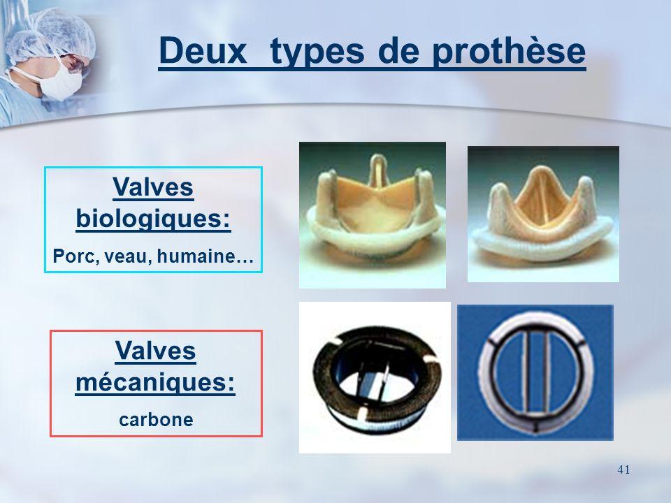 40 Autres valves Le remplacement de la valve tricuspide seule est exceptionnel. Le plus souvent, elle est corrigée par plastie lors dun remplacement v