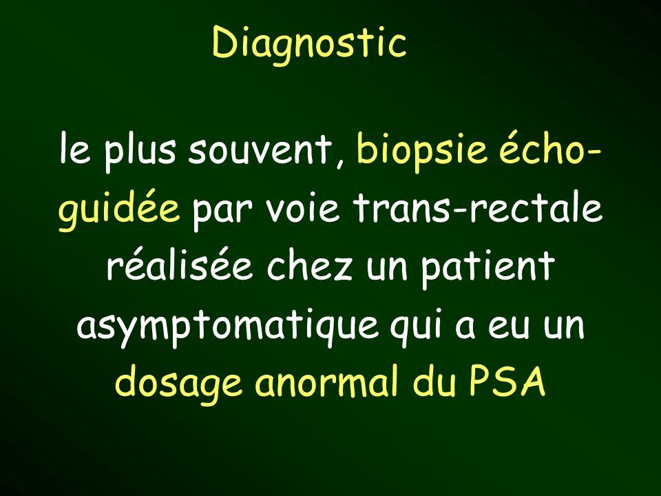 Diagnostic le plus souvent, biopsie écho- guidée par voie trans-rectale réalisée chez un patient asymptomatique qui a eu un dosage anormal du PSA