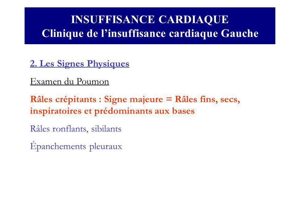 INSUFFISANCE CARDIAQUE Clinique de linsuffisance cardiaque Gauche 2. Les Signes Physiques Examen du Poumon Râles crépitants : Signe majeure = Râles fi