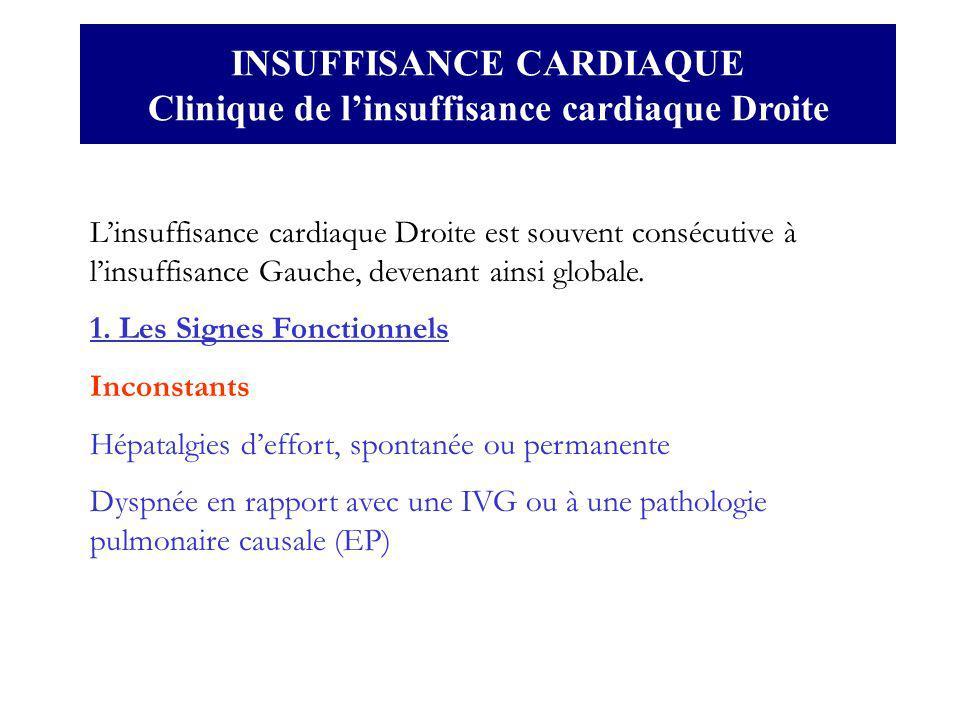 INSUFFISANCE CARDIAQUE Clinique de linsuffisance cardiaque Droite Linsuffisance cardiaque Droite est souvent consécutive à linsuffisance Gauche, deven